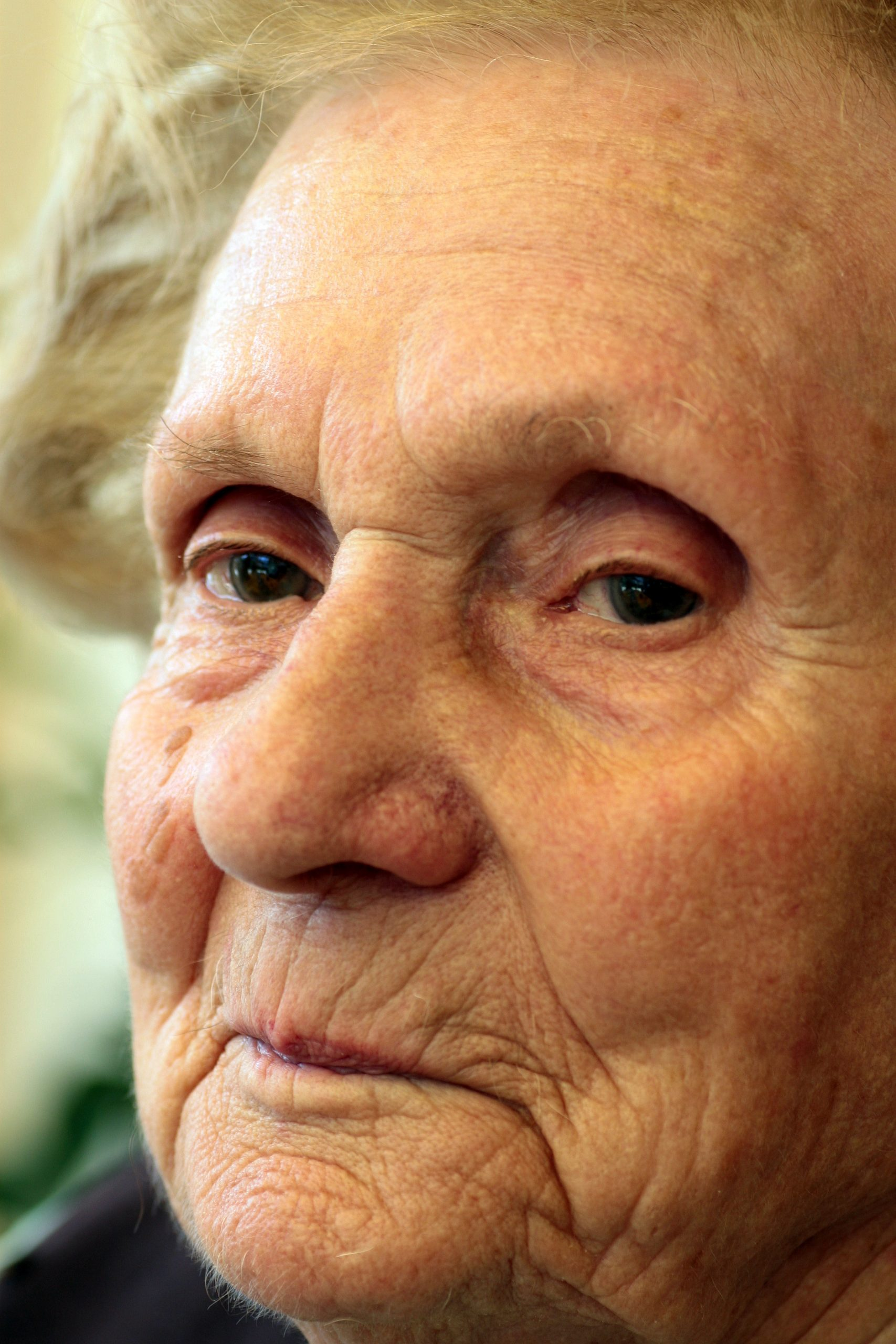 What Health Issue May Be a Hint of Dementia?